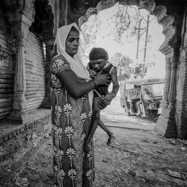 Heart-Wrenching Images Showing The Devastating Affects Of The Bhopal Gas Tragedy Even After 32 Years