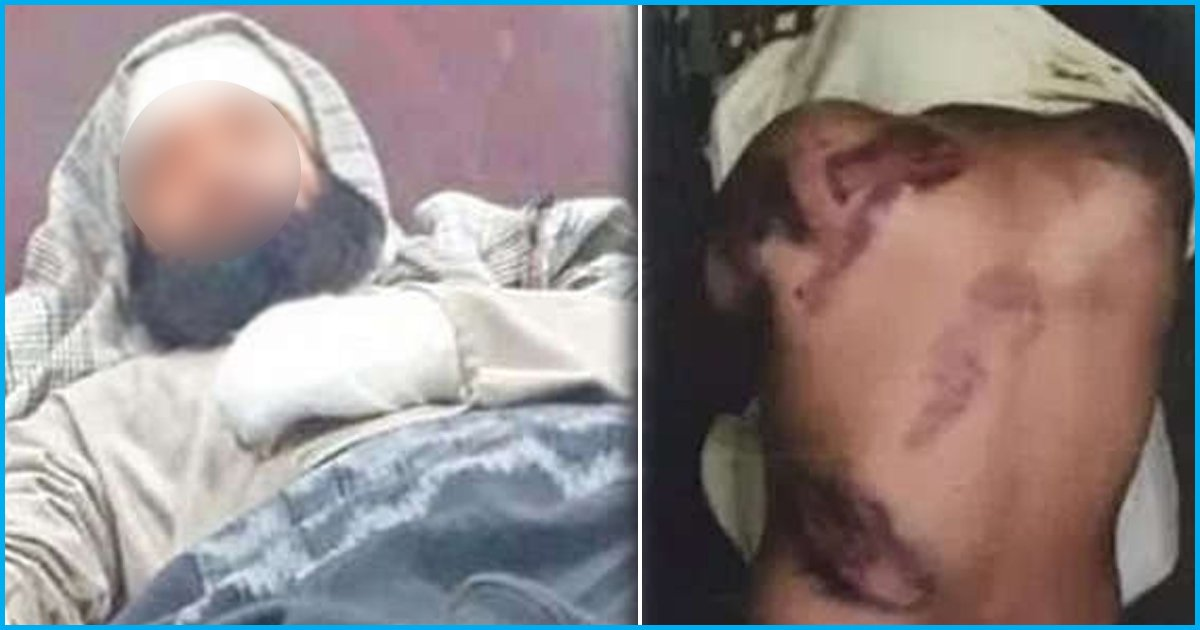 Police Personnel Accused Of Mercilessly Thrashing Kashmiri Suspects In Tihar Jail Suspended