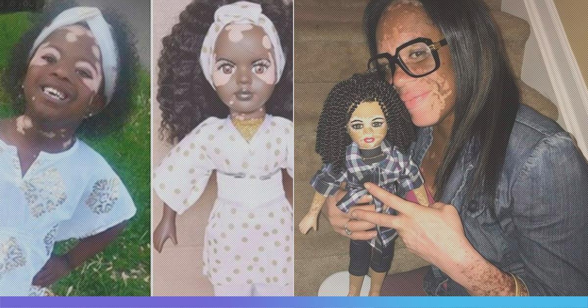 To Make Children More Confident In Their Own Skin, Artist Kay Black Makes Vitiligo Dolls