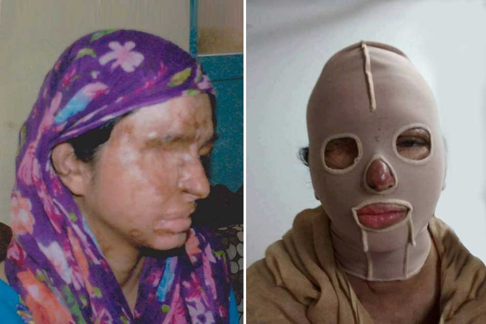 6 Years After The Attack, Delhi HC Let Off The Accused Who Poured Acid On Her