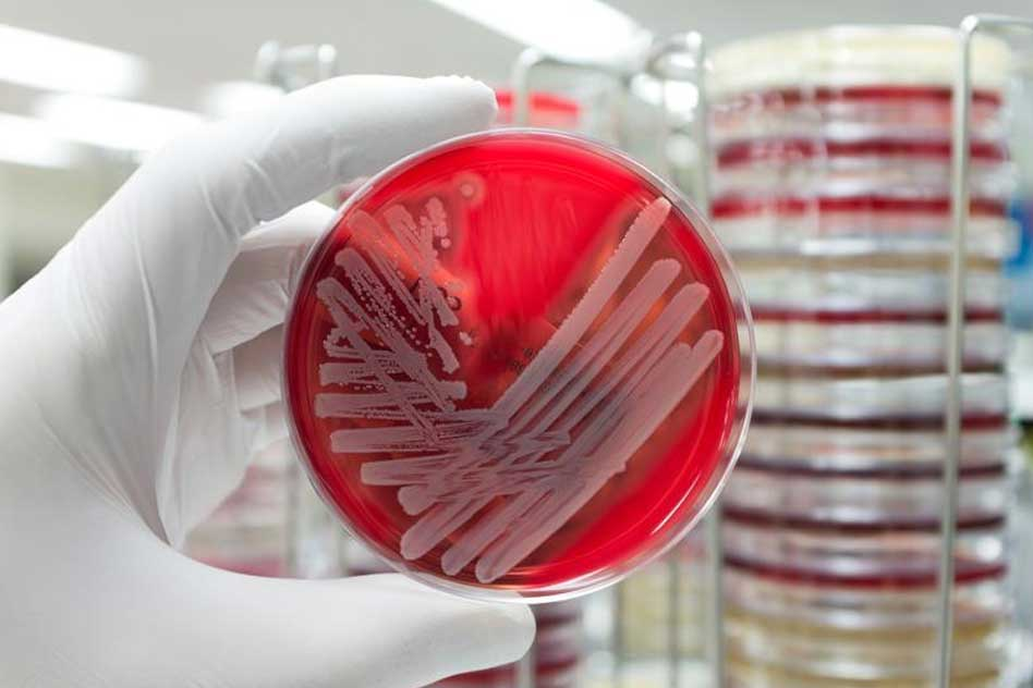 U.S. Woman Who Died Of Superbug Infection Obtained The Bug In Delhi: CDC Report