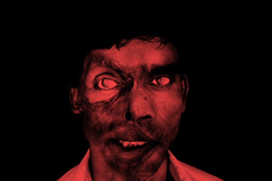 Man Loses Eyesight In An Acid Attack, After He Refuses To Marry