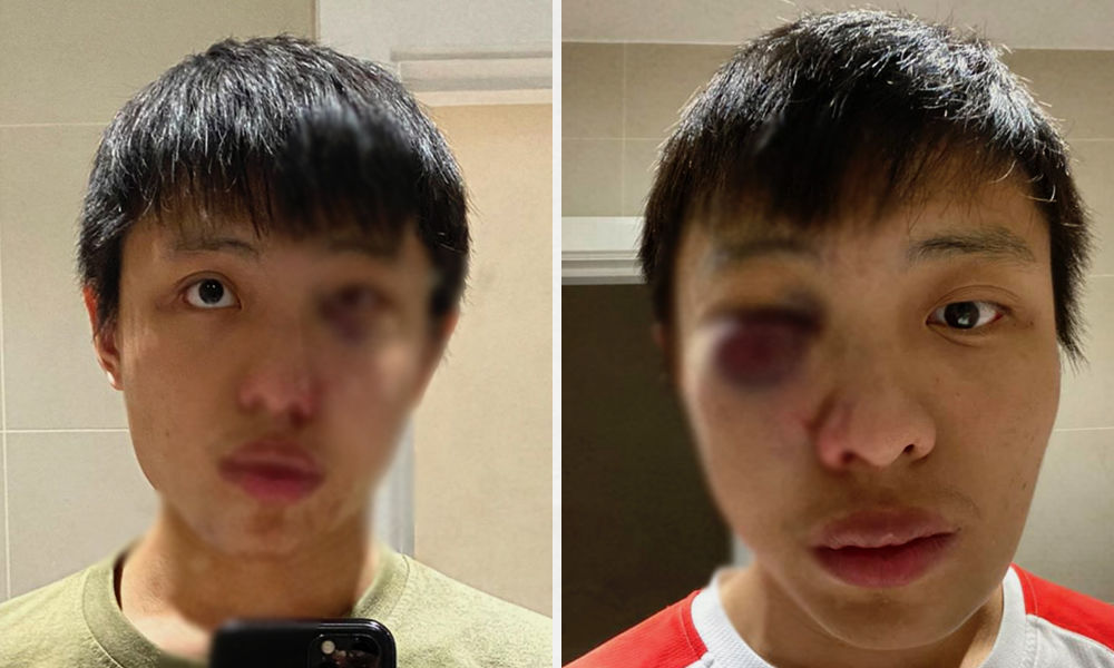 I Dont Want Your Coronavirus In My Country: Singapore Student Faces Racial Attack In London