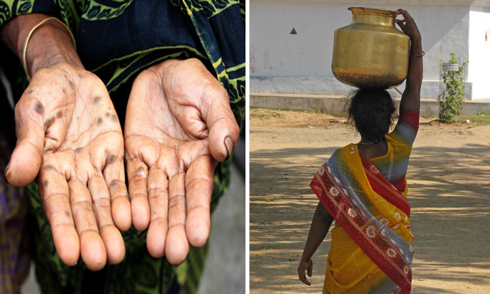 10 Lakh People Died In 25 Years Due To Arsenic Contamination; High Risk Of Cancer In 200 Cities In Gangetic Plain