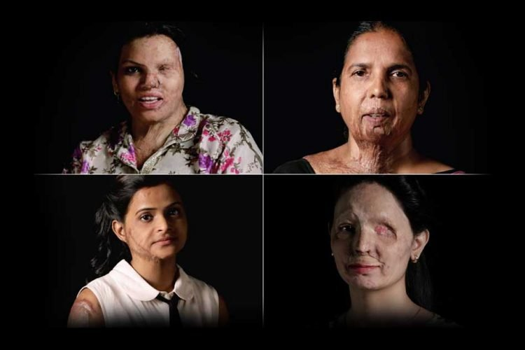 Job Portal Acid Attack Survivors
