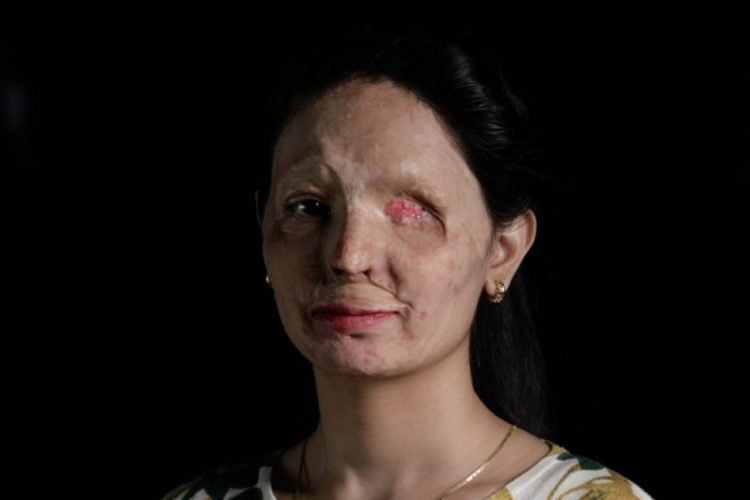 Campaign For Acid Attack Survivors
