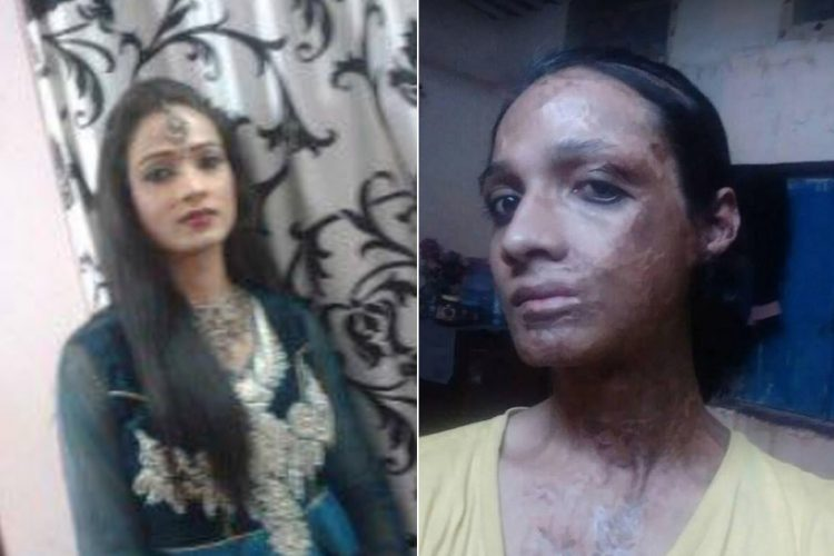 Acid Attack Victim Sonia
